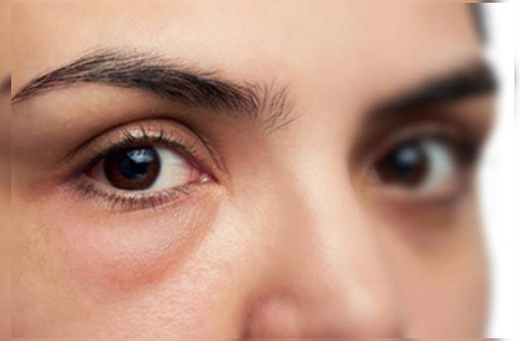 4 Tips Mudah Menghilangkan Kantong Mata